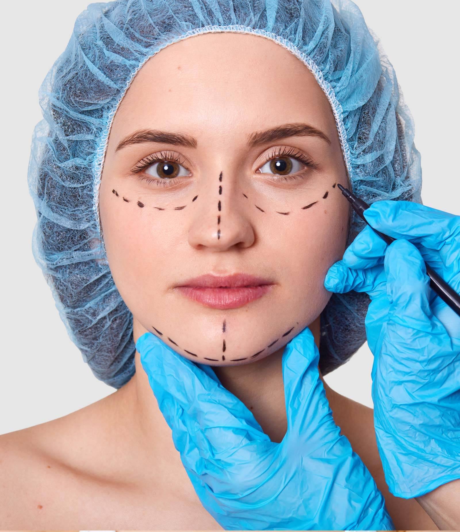 orta-yuz-germe-ameliyati-oncesi